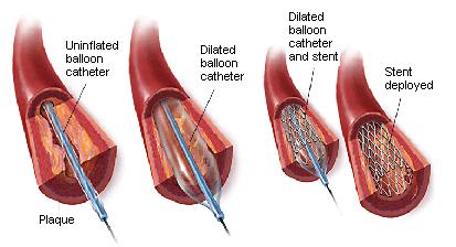 arterial4