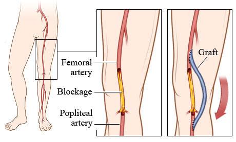 arterial5